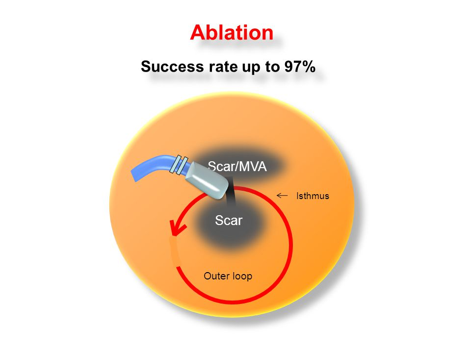 RA Ablation Success rate up to 97% Scar Outer loop Isthmus Scar/MVA