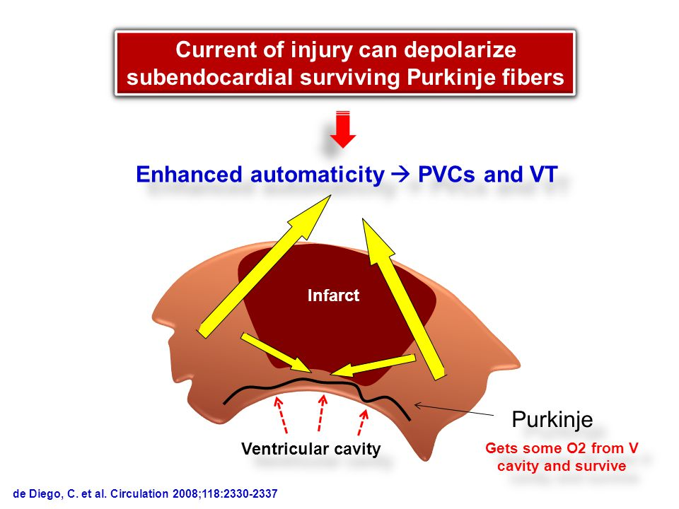 Infarct Ventricular cavity Purkinje Current of injury can depolarize subendocardial surviving Purkinje fibers Gets some O2 from V cavity and survive Enhanced automaticity  PVCs and VT de Diego, C.