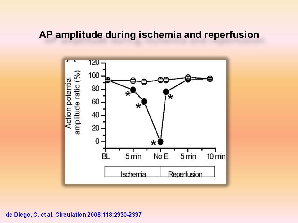 AP amplitude during ischemia and reperfusion de Diego, C. et al. Circulation 2008;118:2330-2337