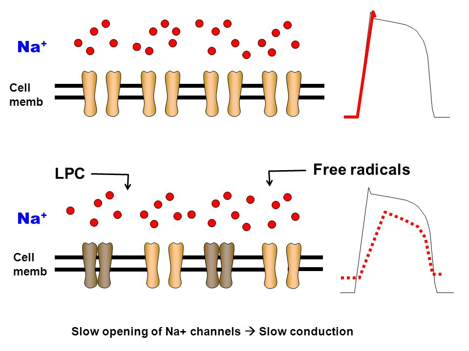 Slow opening of Na+ channels  Slow conduction Na + Cell memb Na + Cell memb Free radicals LPC