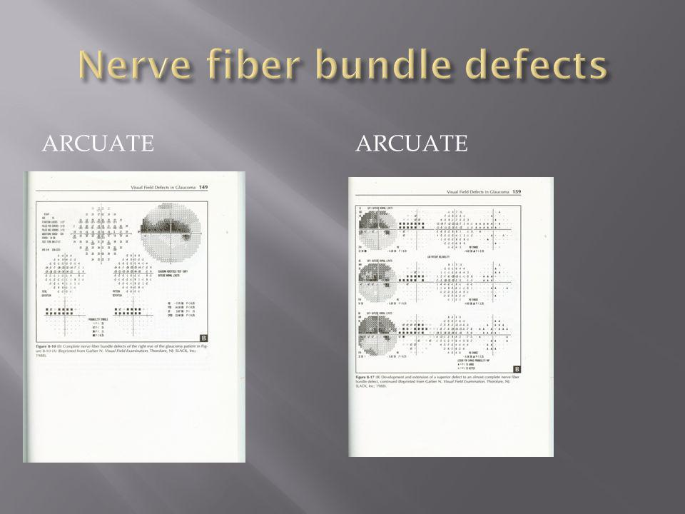 Arcuate nerve fiber bundle defect This nerve fiber layer has damage inferiorly but shows superiorly on the VF.