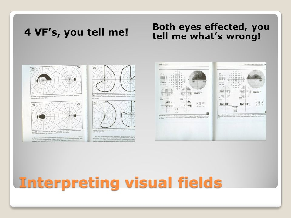 Interpreting visual fields 4 VF's, you tell me! Both eyes effected, you tell me what's wrong!