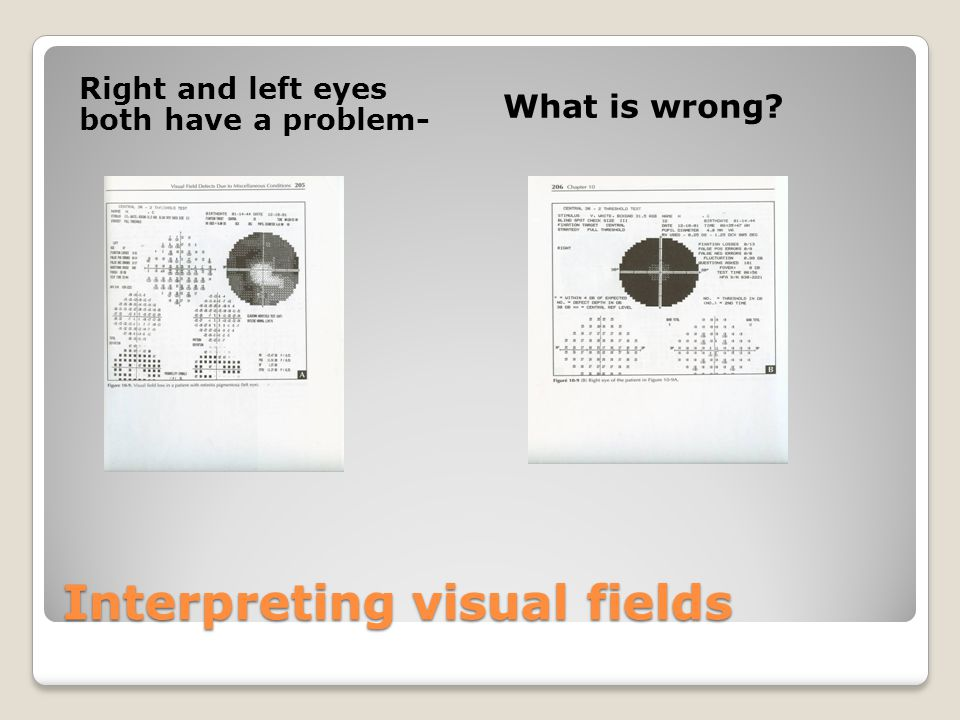 Interpreting visual fields Right and left eyes both have a problem- What is wrong?