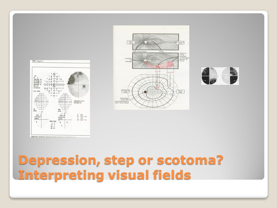 Depression, step or scotoma Interpreting visual fields