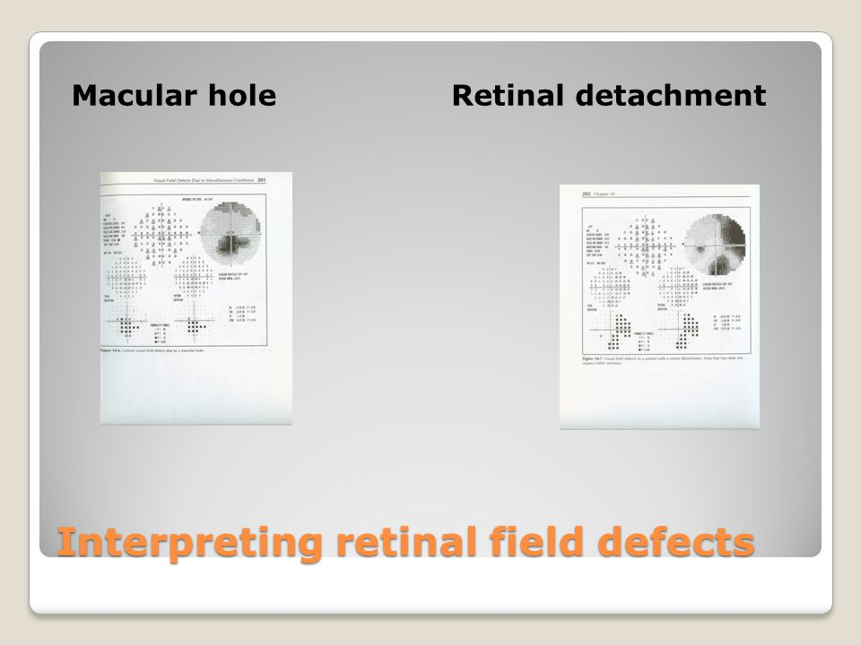 Interpreting retinal field defects Macular holeRetinal detachment