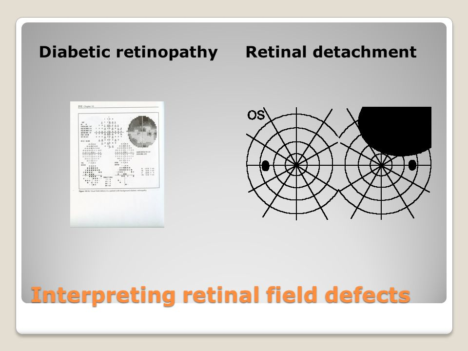 Interpreting retinal field defects Diabetic retinopathyRetinal detachment