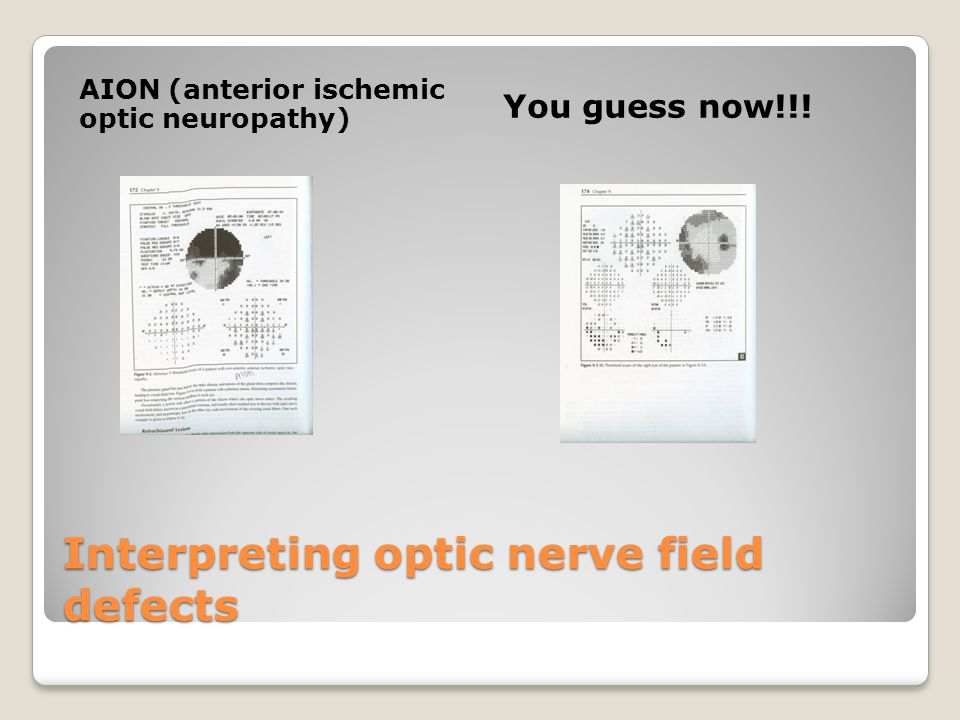 Interpreting optic nerve field defects AION (anterior ischemic optic neuropathy) You guess now!!!