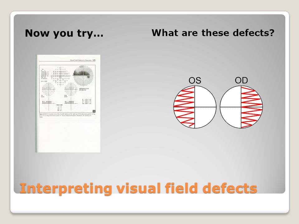 Interpreting visual field defects Now you try… What are these defects?