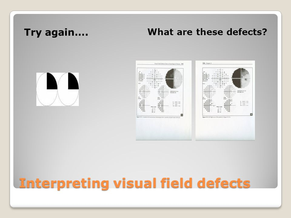 Interpreting visual field defects Try again…. What are these defects