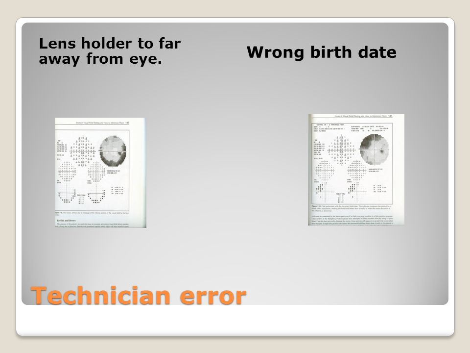 Technician error Lens holder to far away from eye. Wrong birth date