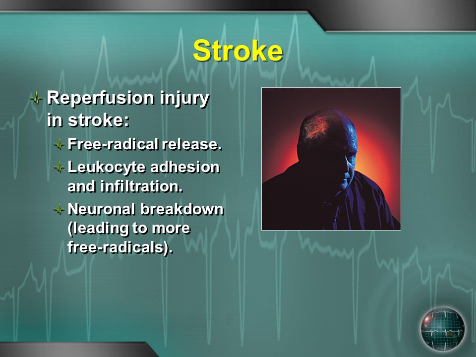 Stroke Reperfusion injury in stroke: Free-radical release. Leukocyte adhesion and infiltration. Neuronal breakdown (leading to more free-radicals). Re