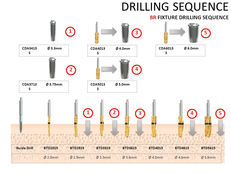 DRILLING SEQUENCE BR FIXTURE DRILLING SEQUENCE Guide DrillBTD2015BTD2915BTD3315BTD3615BTD4015BTD4615BTD5615 -Ø 2.0mmØ 2.9mmØ 3.3mmØ 3.6mmØ 4.0mmØ 4.6mmØ 5.6mm CDA3413 S Ø 3.3mm CDA3713 S Ø 3.75mm CDA4013 S Ø 4.0mm CDA5013 S Ø 5.0mm CDA6013 S Ø 6.0mm 1 1 2 2 3 4 5 3 4 5