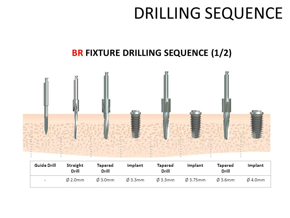 DRILLING SEQUENCE BR FIXTURE DRILLING SEQUENCE (1/2) Guide DrillStraight Drill Tapered Drill ImplantTapered Drill ImplantTapered Drill Implant -Ø 2.0mmØ 3.0mmØ 3.3mm Ø 3.75mmØ 3.6mmØ 4.0mm