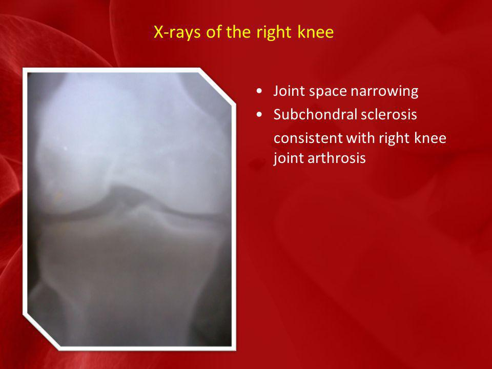 X-rays of the right knee Joint space narrowing Subchondral sclerosis consistent with right knee joint arthrosis
