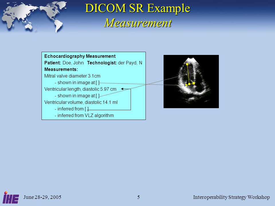 June 28-29, 2005Interoperability Strategy Workshop5 DICOM SR Example Measurement Echocardiography Measurement Patient: Doe, John Technologist: der Pay