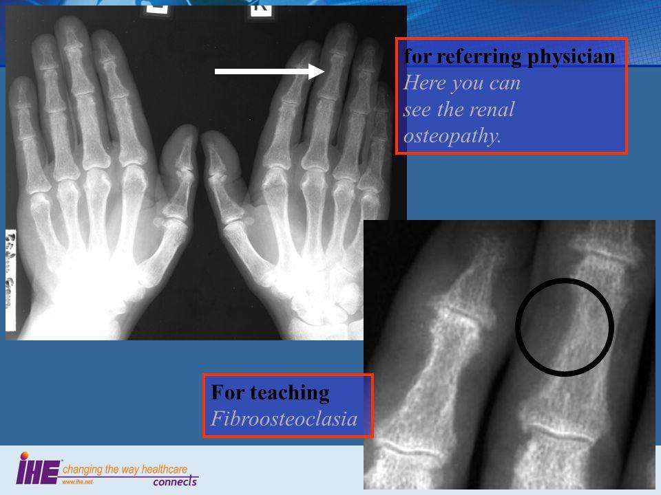 Evidence Documents Key Image Notes Simple Image & Numeric Report Interpretation …..