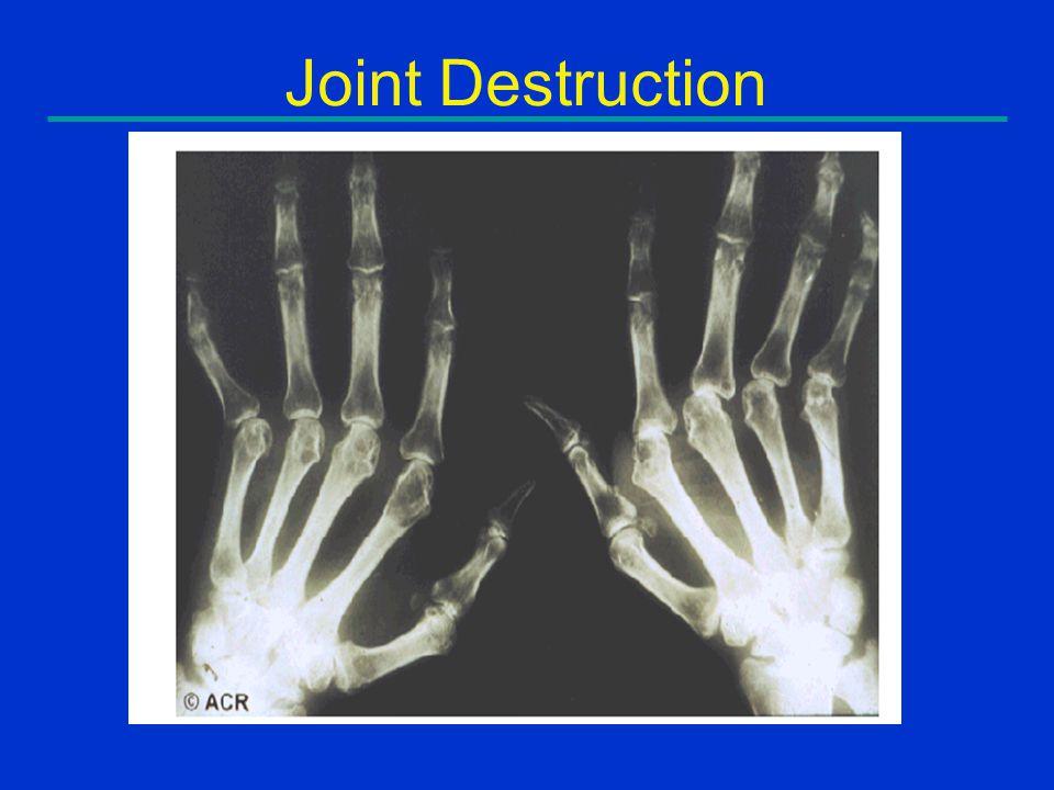 Joint Destruction