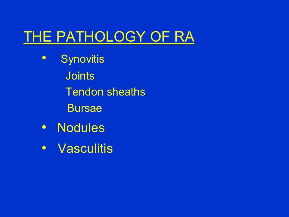 THE PATHOLOGY OF RA Synovitis Joints Tendon sheaths Bursae Nodules Vasculitis