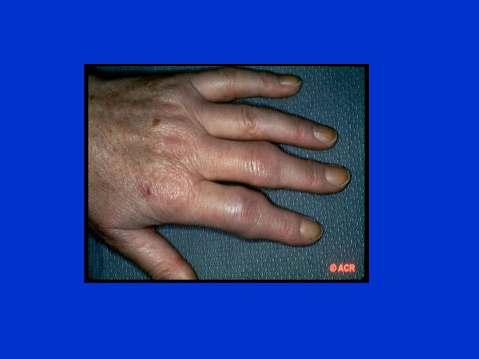 MANAGEMENT OF OSTEOARTHTITIS Confirm diagnosis Initial Therapy : Pysiotherapy Wt loss Local therapy Paracetamol