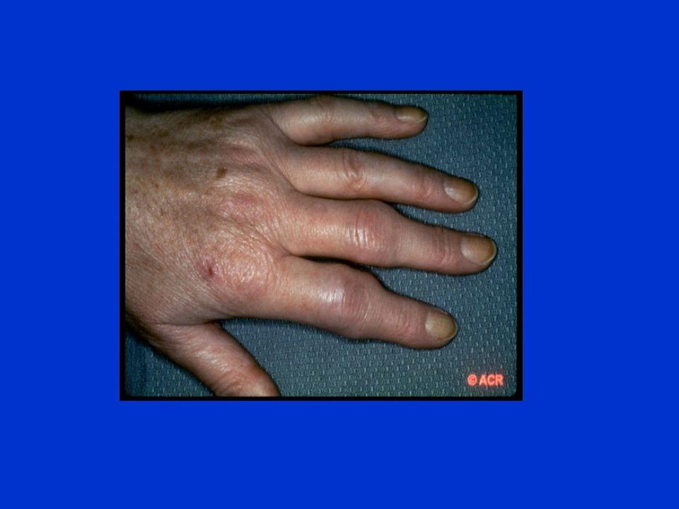 Nonsteroidal Anti-Inflammatory Drugs (NSAIDs) Traditional NSAIDs Aspirin Ibuprofen Ketoprofen Naproxen COX-2 Inhibitors Celecoxib Rofecoxib