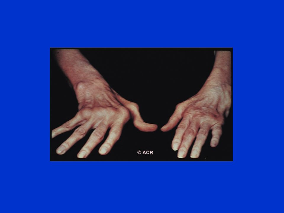 Nonsteroidal Anti-Inflammatory Drugs (NSAIDs) To relieve pain and inflammation Use in combination with a DMARD Gastrointestinal side effects