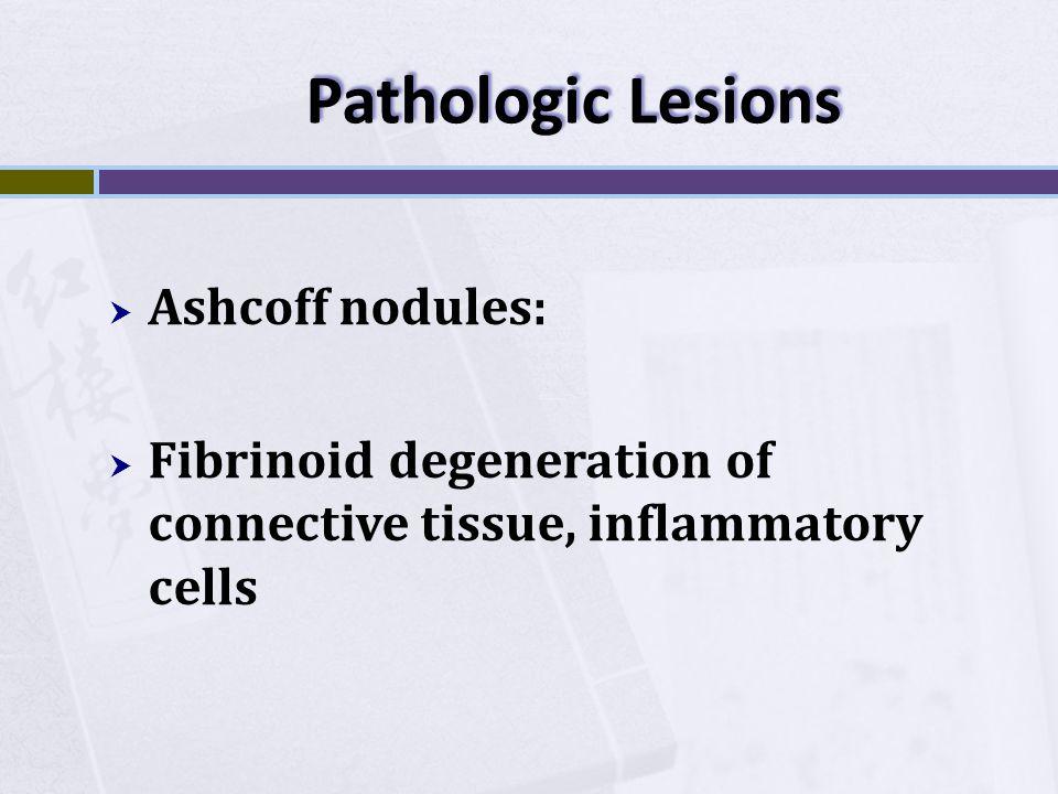 Pathologic Lesions  Ashcoff nodules:  Fibrinoid degeneration of connective tissue, inflammatory cells