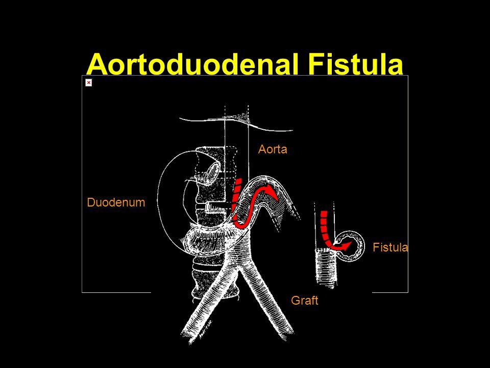 Aortoduodenal Fistula Aorta Duodenum Graft Fistula