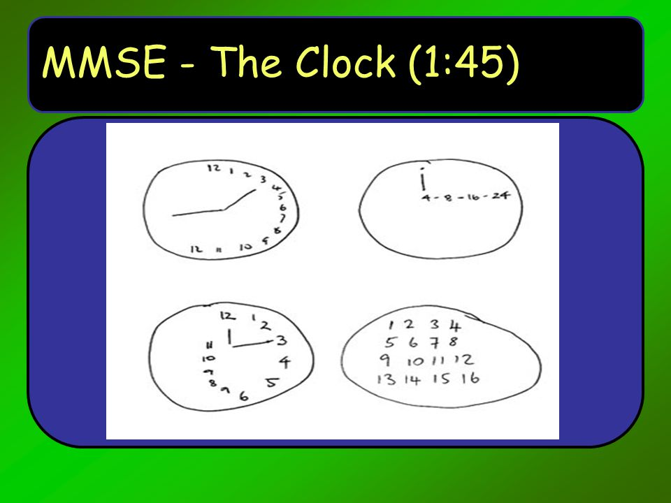 MMSE - The Clock (1:45)