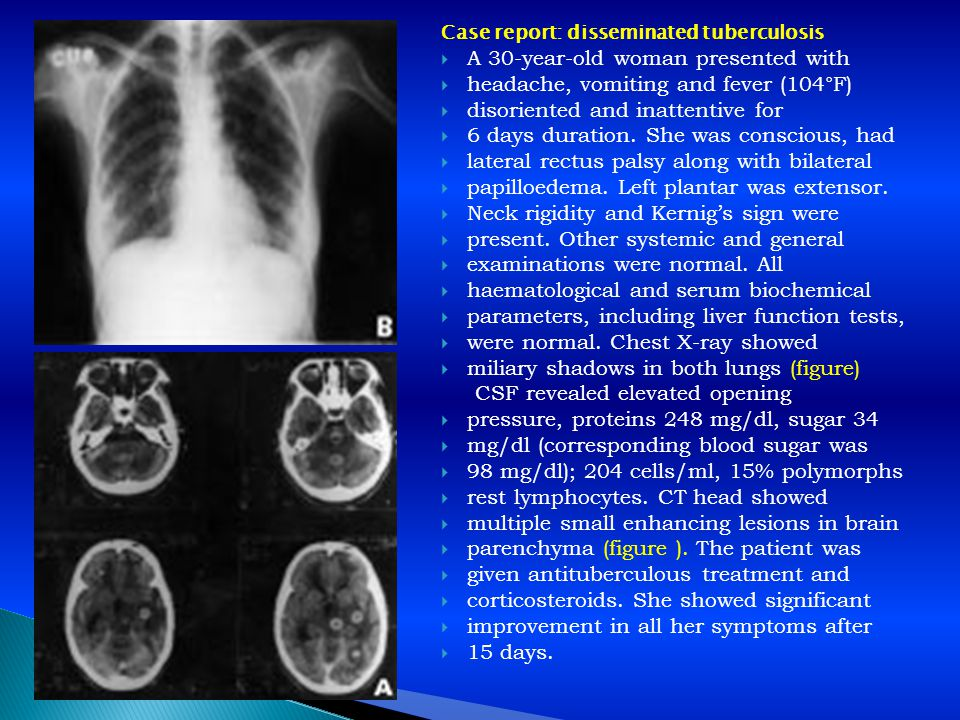 Case report: disseminated tuberculosis  A 30-year-old woman presented with  headache, vomiting and fever (104°F)  disoriented and inattentive for 