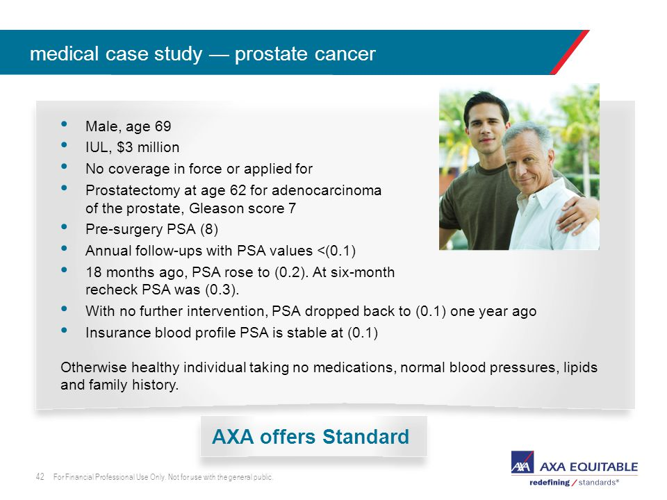 click to edit master lead-in head Male, age 69 IUL, $3 million No coverage in force or applied for Prostatectomy at age 62 for adenocarcinoma of the prostate, Gleason score 7 Pre-surgery PSA (8) Annual follow-ups with PSA values <(0.1) 18 months ago, PSA rose to (0.2).