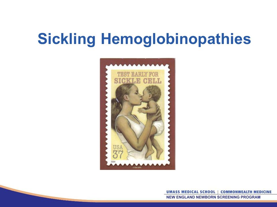 Sickling Hemoglobinopathies