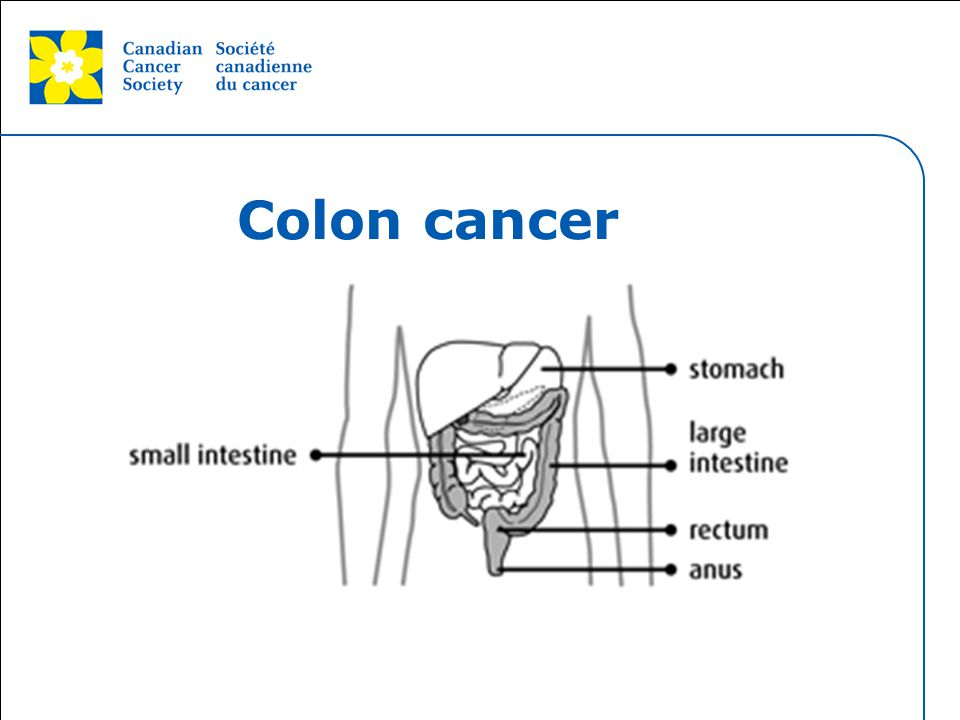 This grey area will not appear in your presentation. Colon cancer