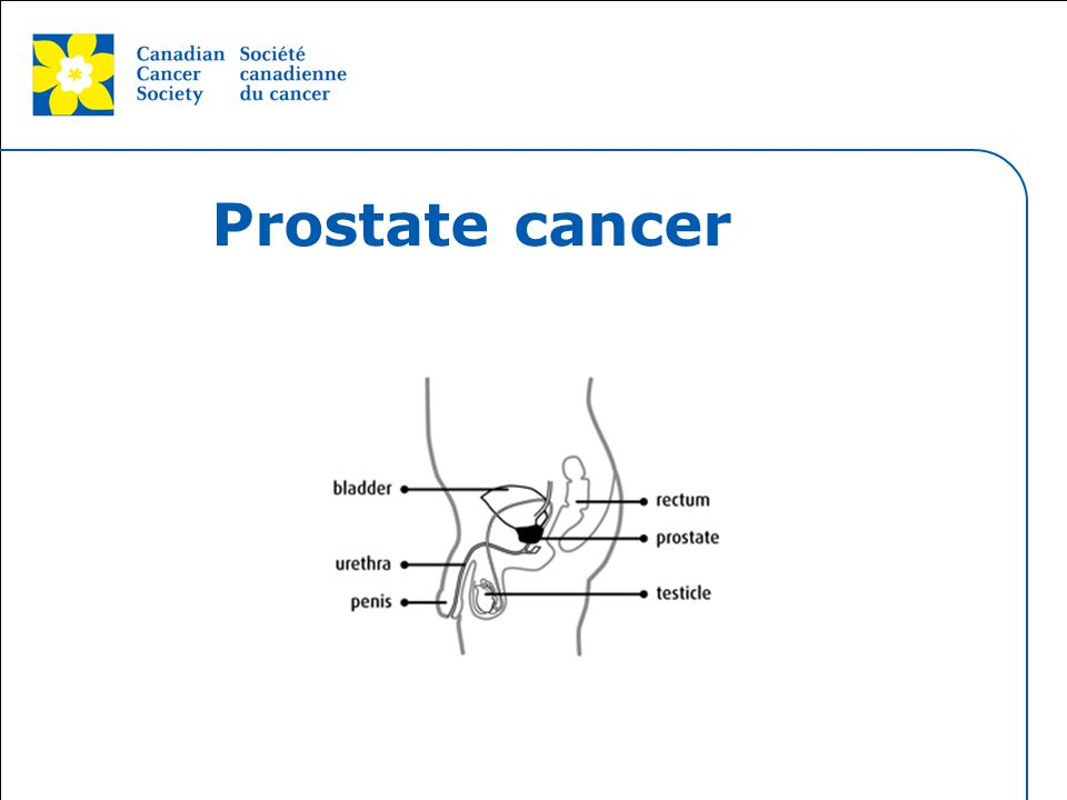 This grey area will not appear in your presentation. Prostate cancer