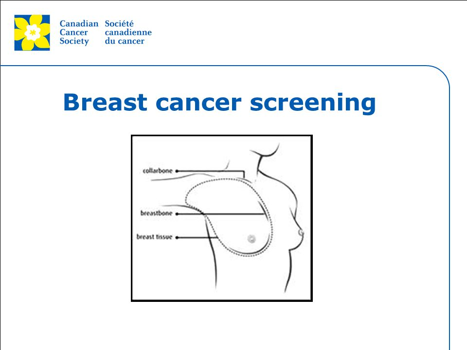 This grey area will not appear in your presentation. Breast cancer screening