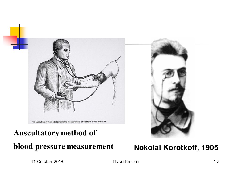Nokolai Korotkoff, 1905 Auscultatory method of blood pressure measurement 11 October 201418Hypertension