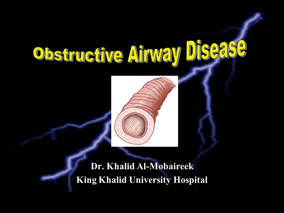 Obstructive airway Disease: Reversible = Asthma Irreversible: Bronchiectasis –Localized: Anatomical –Airway: Internal, External, –Parynchymal –Diffuse: Aspiration Mucociliary clearance: PCD, CF Immune deficiency Congenital Post-infectious: Pertusis, TB, adenovirus..