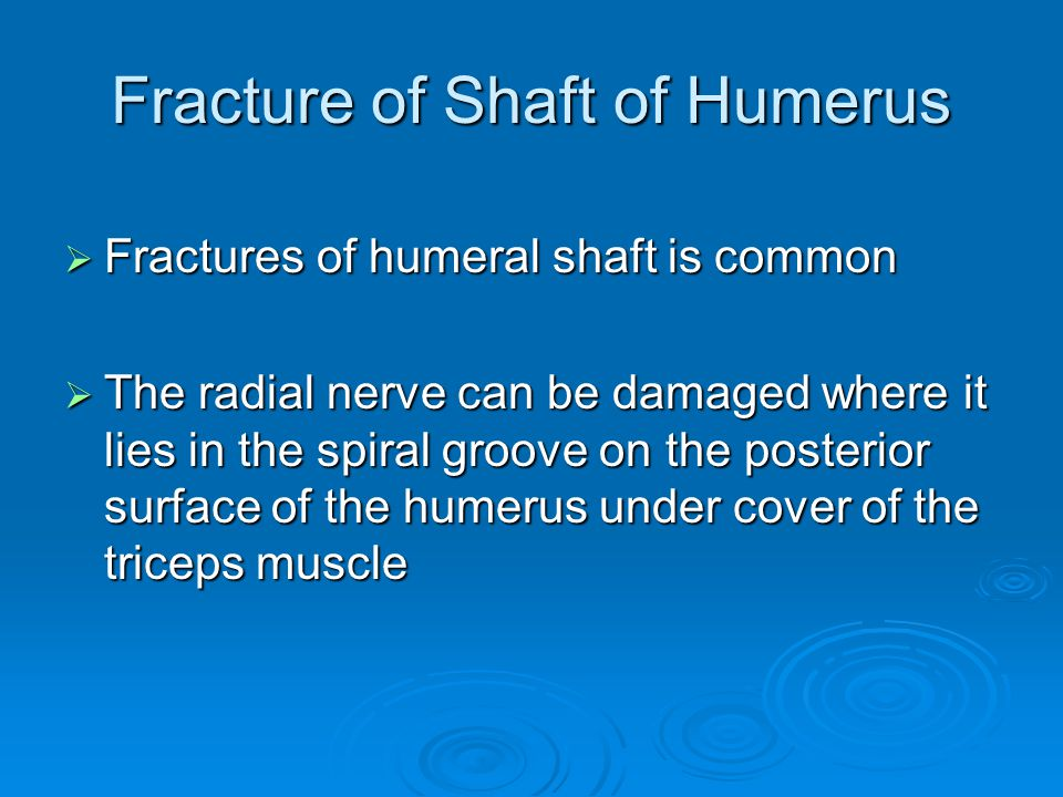 Fracture of Shaft of Humerus  Fractures of humeral shaft is common  The radial nerve can be damaged where it lies in the spiral groove on the poster