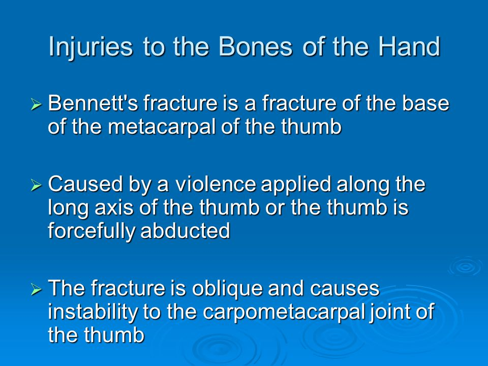 Injuries to the Bones of the Hand  Bennett's fracture is a fracture of the base of the metacarpal of the thumb  Caused by a violence applied along t