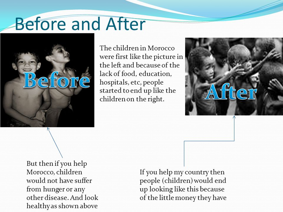 Before and After If you help my country then people (children) would end up looking like this because of the little money they have But then if you help Morocco, children would not have suffer from hunger or any other disease.