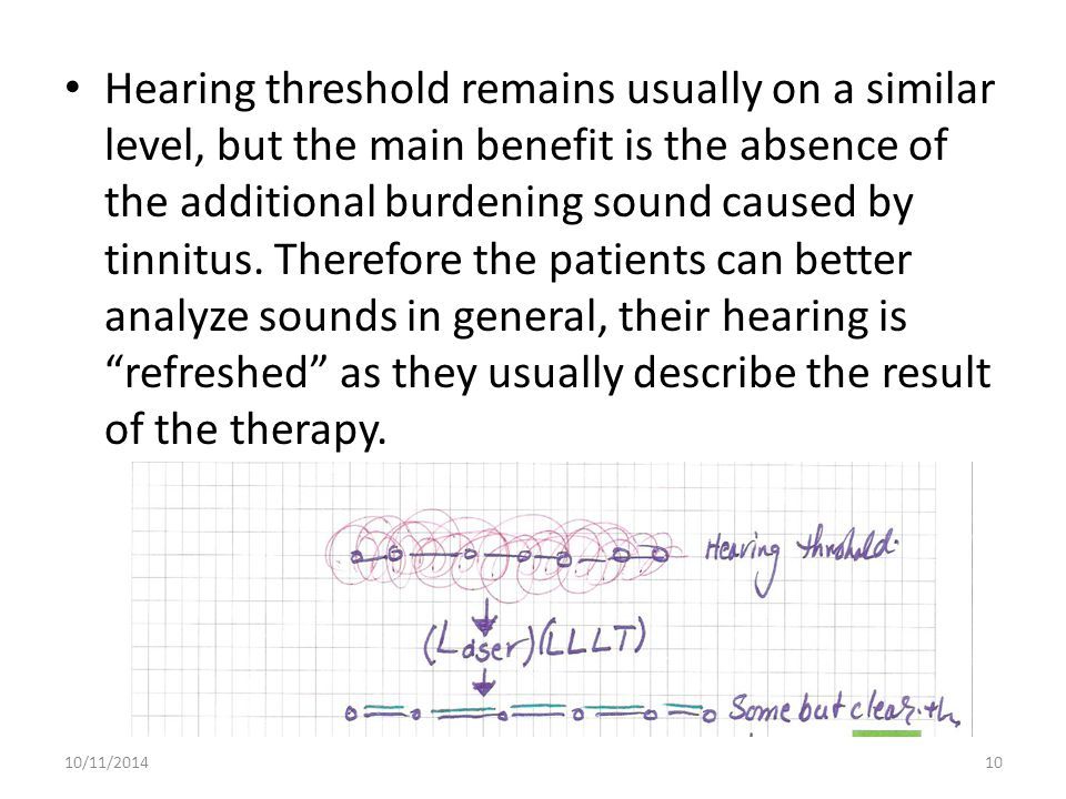 Hearing threshold remains usually on a similar level, but the main benefit is the absence of the additional burdening sound caused by tinnitus. Theref