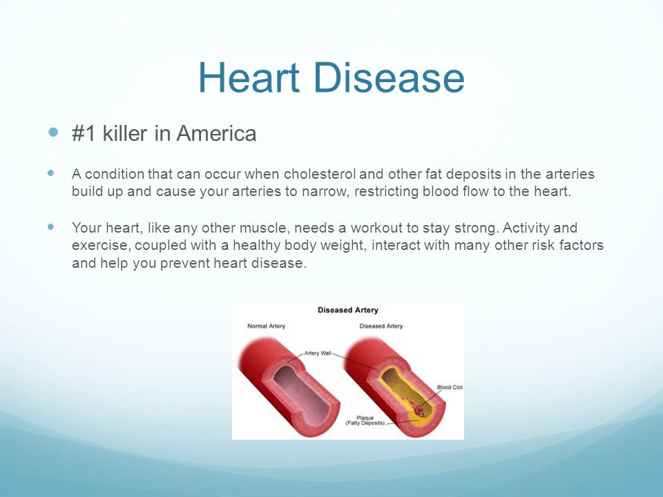 Heart Disease #1 killer in America A condition that can occur when cholesterol and other fat deposits in the arteries build up and cause your arteries to narrow, restricting blood flow to the heart.