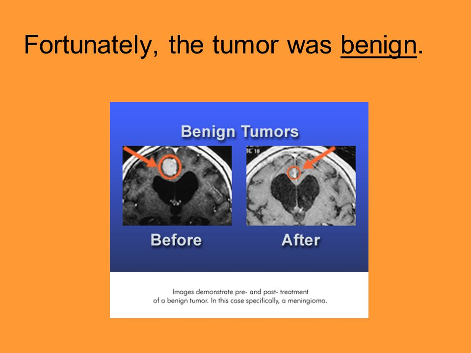 Fortunately, the tumor was benign.