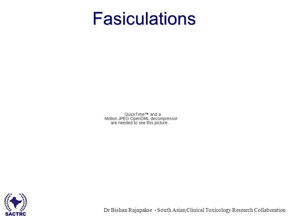 Fasiculations