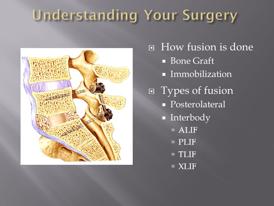  How fusion is done  Bone Graft  Immobilization  Types of fusion  Posterolateral  Interbody  ALIF  PLIF  TLIF  XLIF