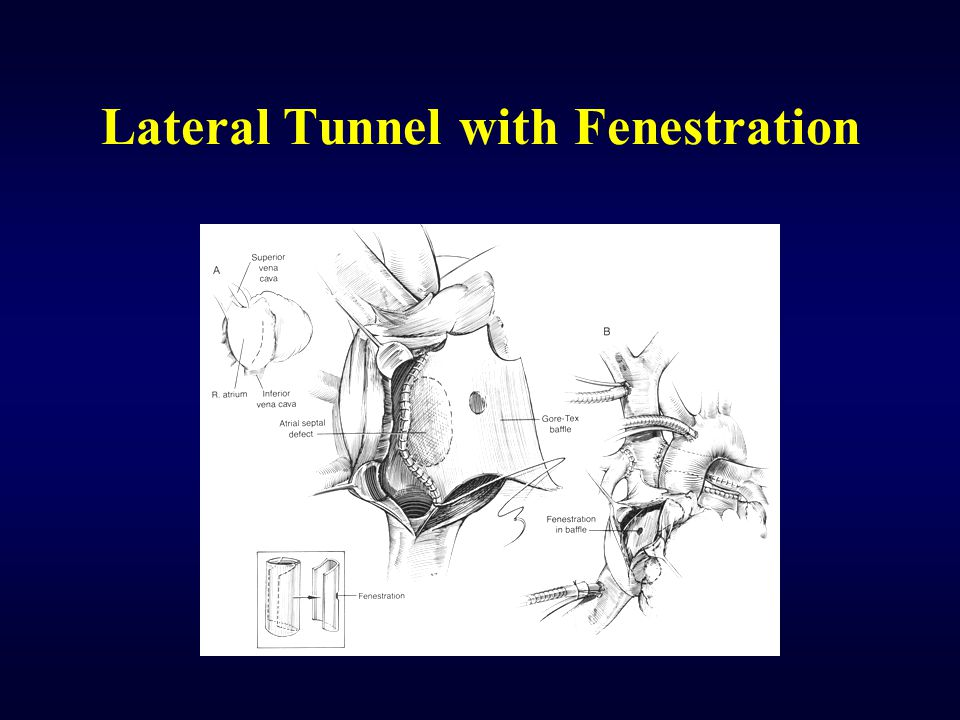 Lateral Tunnel with Fenestration