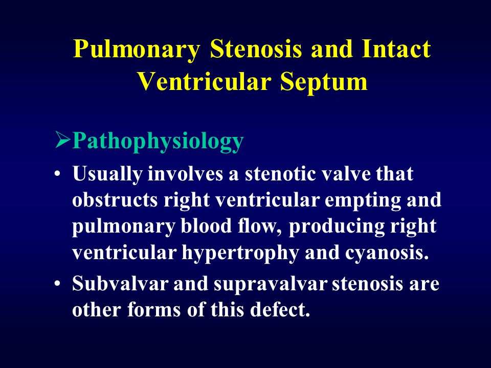 Pulmonary Stenosis and Intact Ventricular Septum  Pathophysiology Usually involves a stenotic valve that obstructs right ventricular empting and pulm