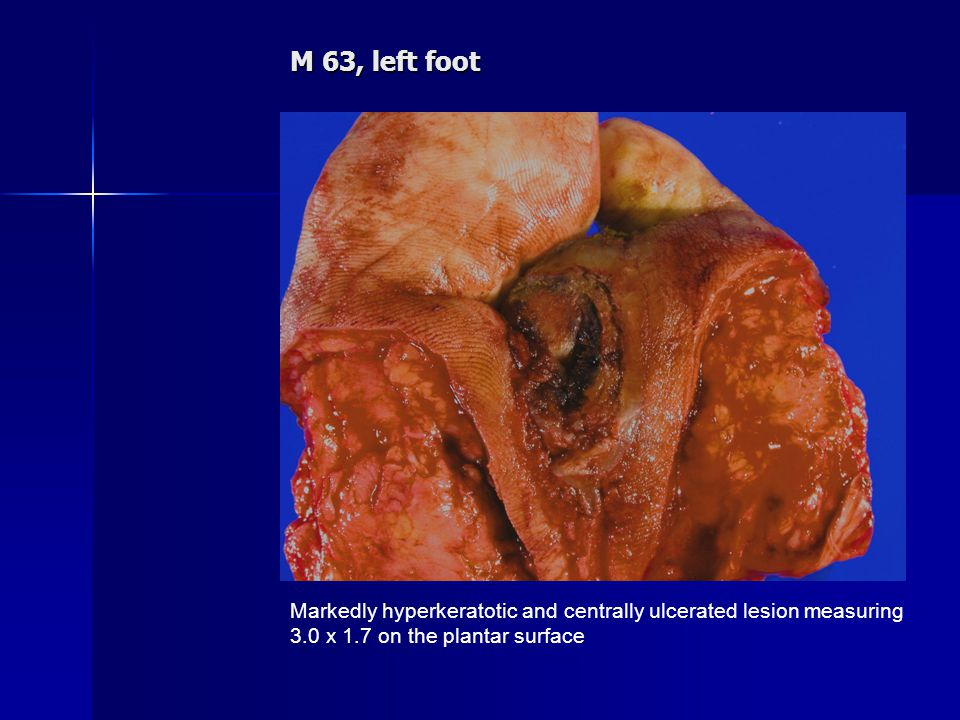 M 63, left foot Markedly hyperkeratotic and centrally ulcerated lesion measuring 3.0 x 1.7 on the plantar surface