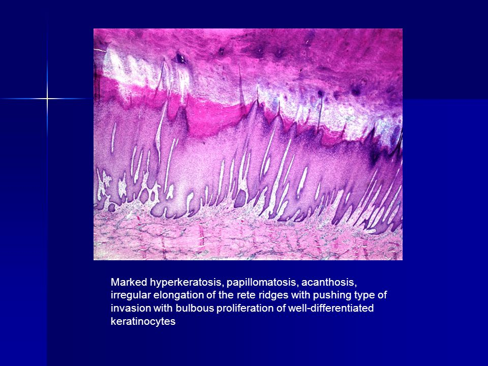 Marked hyperkeratosis, papillomatosis, acanthosis, irregular elongation of the rete ridges with pushing type of invasion with bulbous proliferation of well-differentiated keratinocytes