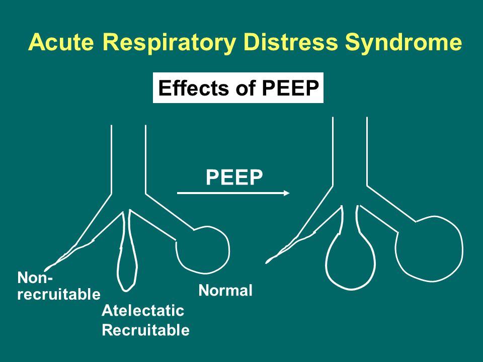 Non- recruitable Atelectatic Recruitable Normal Acute Respiratory Distress Syndrome Effects of PEEP PEEP