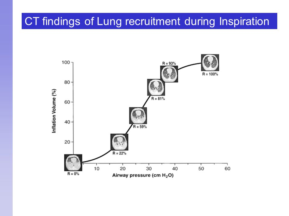 CT findings of Lung recruitment during Inspiration